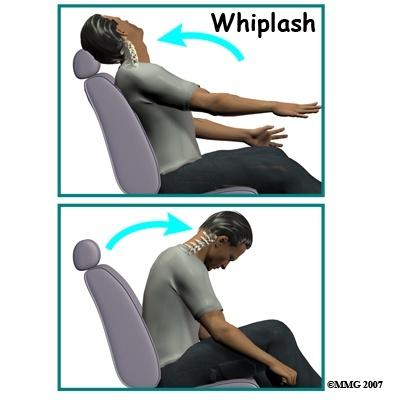 Whiplash Demonstration