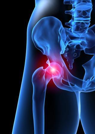 osteoartrose cervical