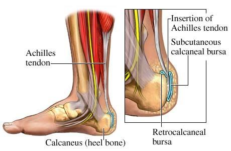 what to do if you have plantar fasciitis