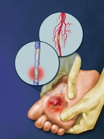 neuropathy diabetes