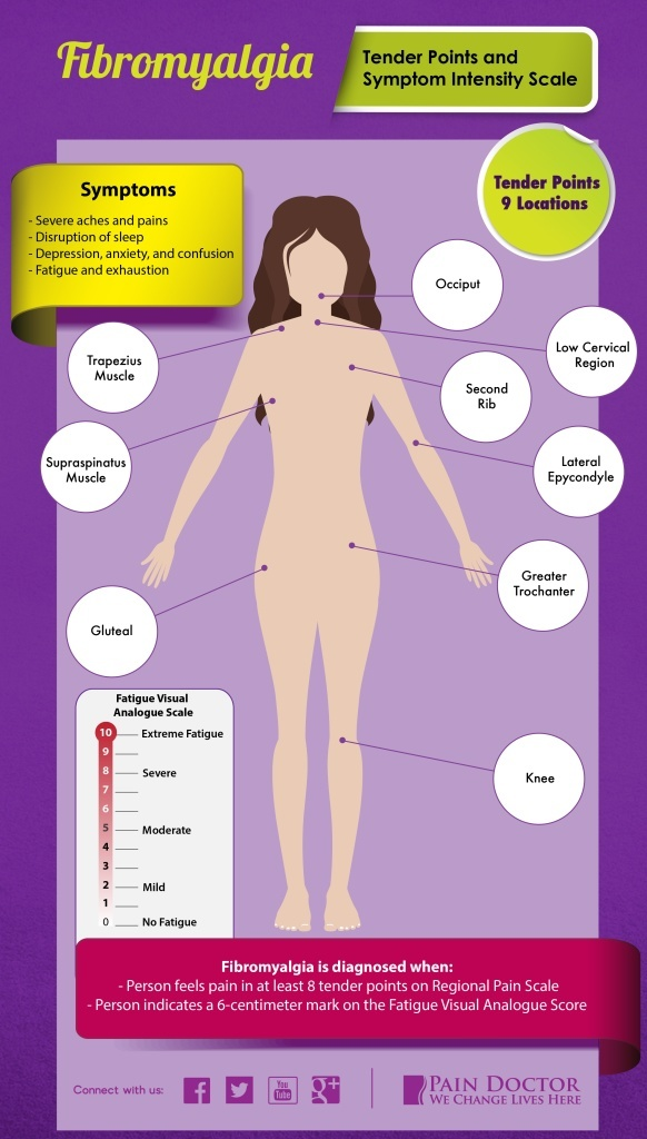 Fibromyalgia Diagnosis - Tender Points And The Symptom Intensity Scale | PainDoctor.com